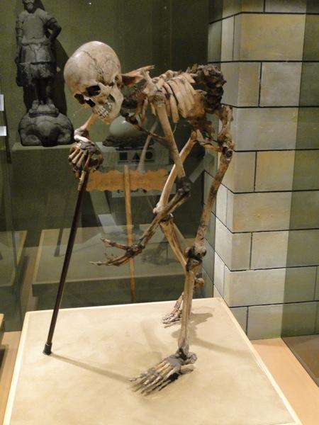 vergroeide rug geraamte bij limburgs museum in venlo